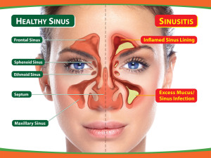 Healthy Sinus Anatomy